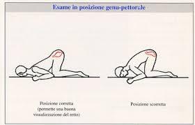 Emorroidi e gravidanza 35esima settimana