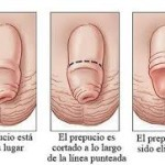 Micropene Ingrandimento